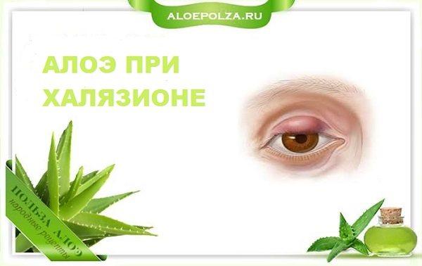 Алоэ при халязионе